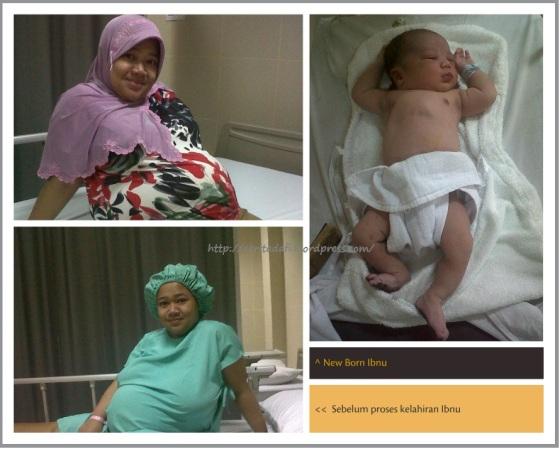 Saat mau CTG, sesaat akan operasi dan new born Ibnu